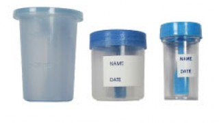 urine stool specimen container